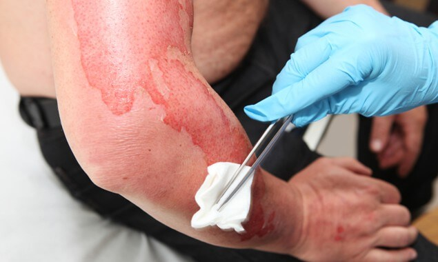 How Are Burn Injuries Evaluated?